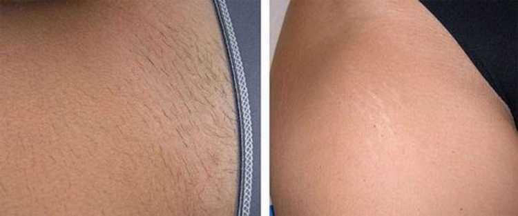 Посмотрите также фото до и после эпиляции глубокого бикини.