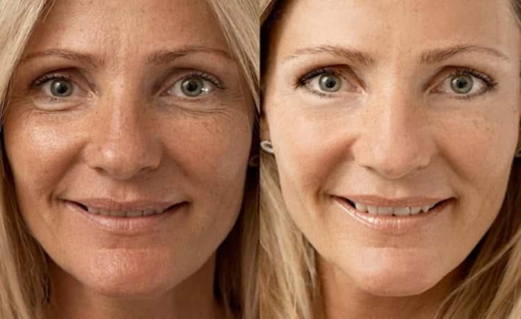 безынъекционная мезотерапия отзывы косметологов