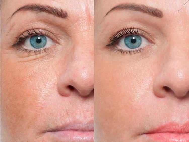 безынъекционная мезотерапия отзывы фото до и после