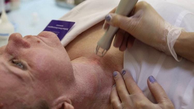 Лазерный пилинг кожи особенно актуален, когда речь идет о возрастных изменениях.