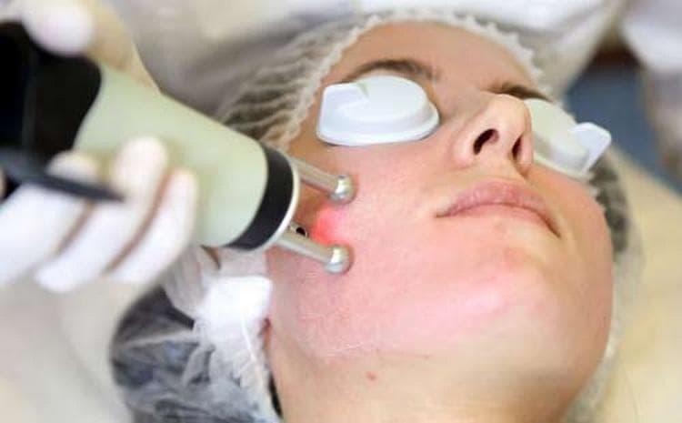 Лазерный пилинг можно делать не только на лице. он также помогает избавиться от растяжек.