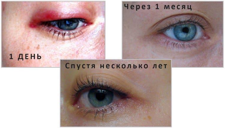 Если сразу после татуажа глаза будут припухлыми, то уже через одну-две недели они будут выглядеть совершенно по-другому.