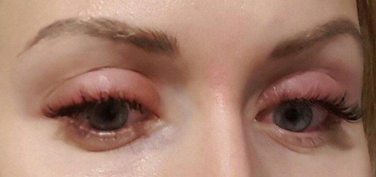 на фот овидны не только плюсы, но и минусы от наращивания ресниц, в частности аллергическая реакция на клей.