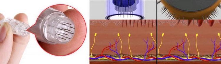 Виды аппаратов для фракционной мезотерапии