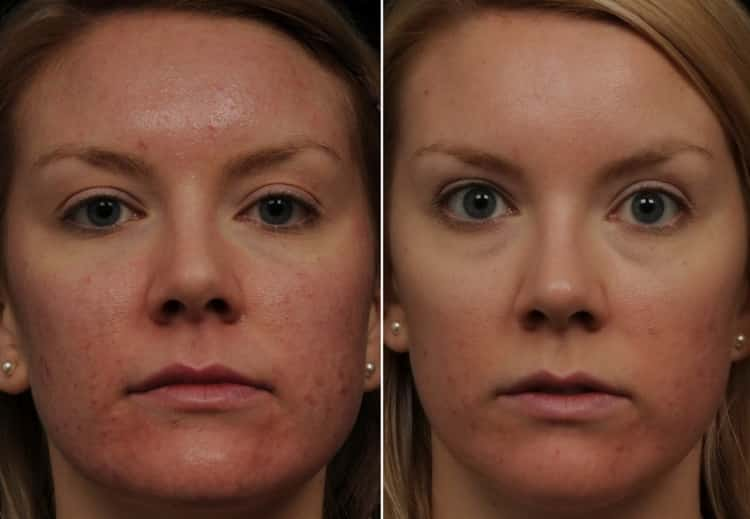 карбоновый пилинг: отзывы косметологов
