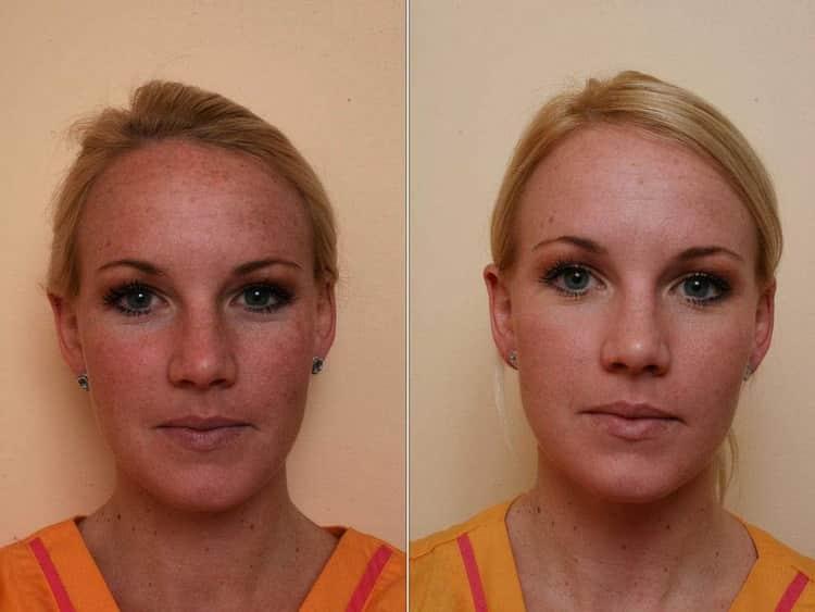 лазерный карбоновый пилинг лица: отзывы