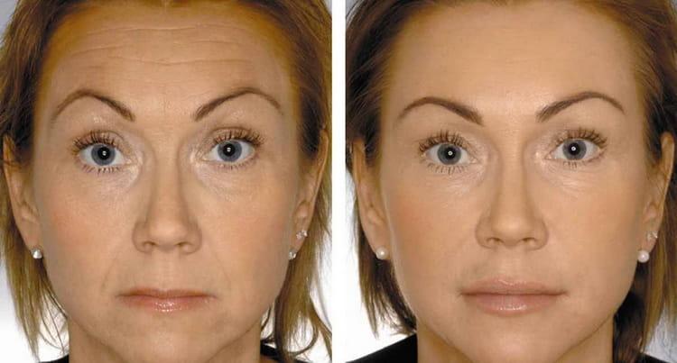 биоревитализация лица отзывы фото до и после