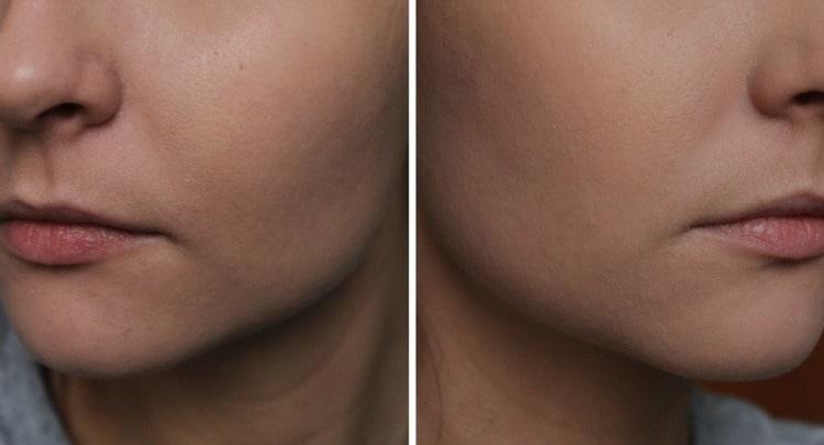 Тональный крем хорошо маскирует недостатки кожи.