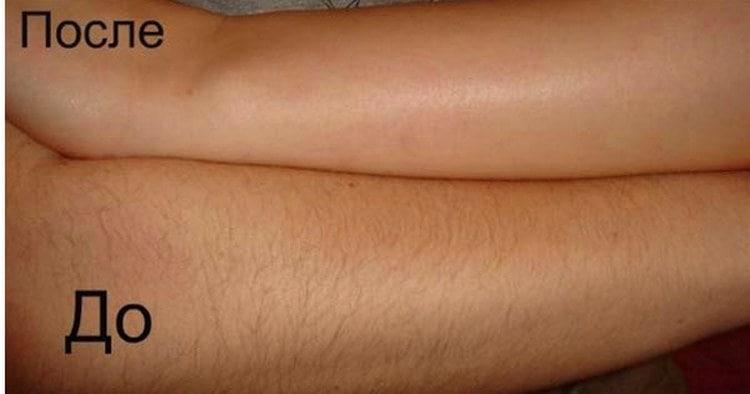 Важно также знать, чем отмыть воск для депиляции с кожи.