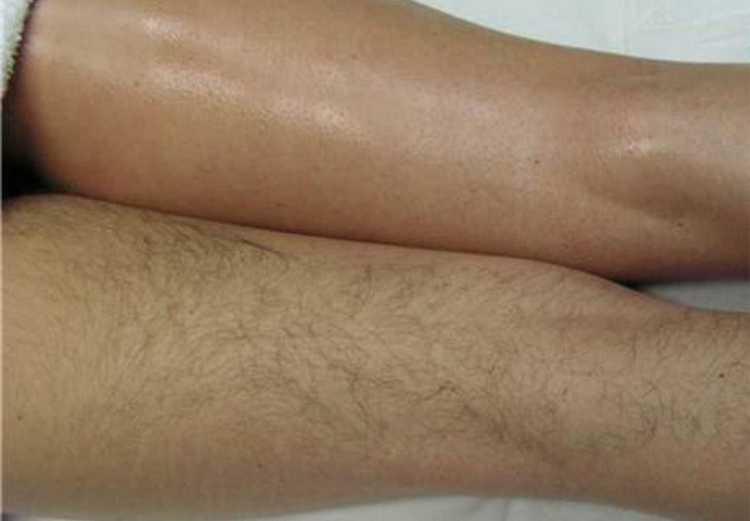 Такая депиляция при условии соблюдения техники выполнения процедуры дает длительный эффект гладкости кожи.