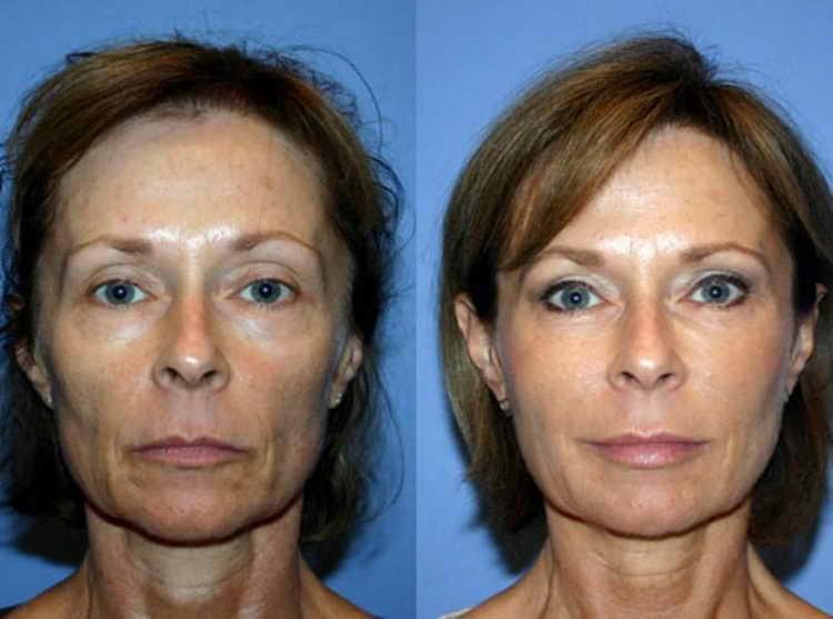 аквашайн br биоревитализация отзывы косметологов