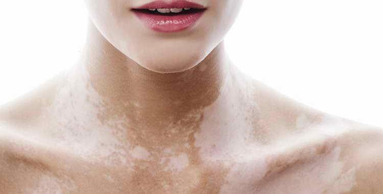 Белые пятна после загара – причины, возможные осложнения. Как избавиться от белых пятен на коже лица и тела после загара