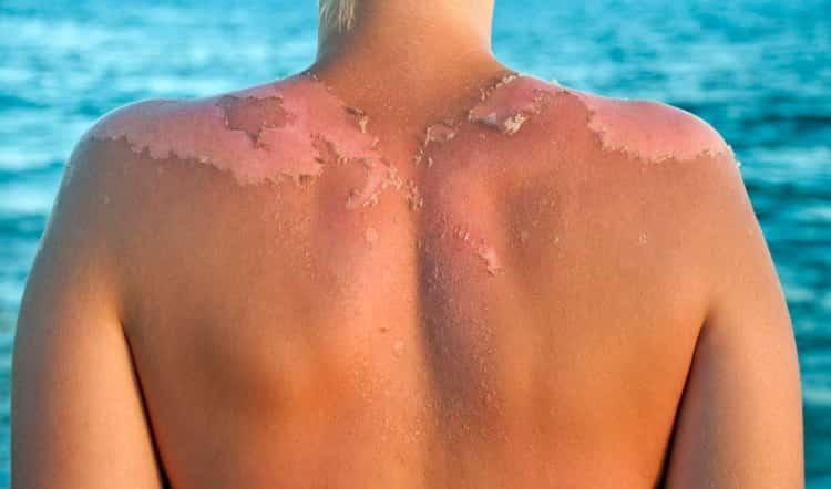 чешется или облазит кожа после загара: что делать