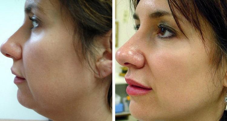 фракционная мезотерапия кожи лица эффективность отзывы