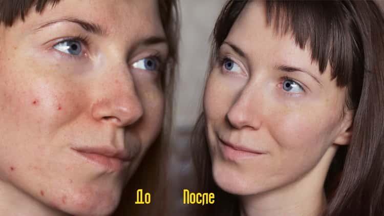 Особенности процедуры энзимного пилинга с фото и отзывами