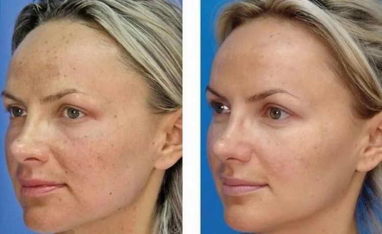 химический пилинг фото до и после