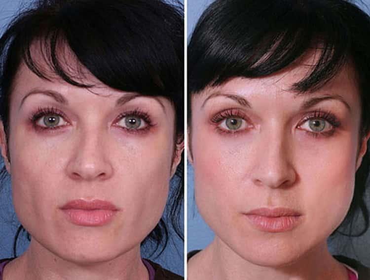 Косметика Кора с отзывами покупателей и косметологов