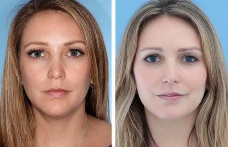 лазерная биоревитализация кожи