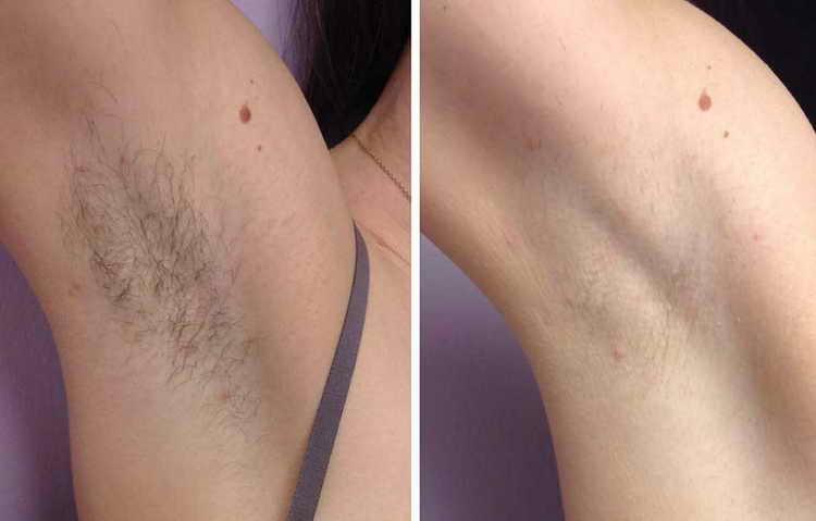 удаление волос лазером отзывы последствия
