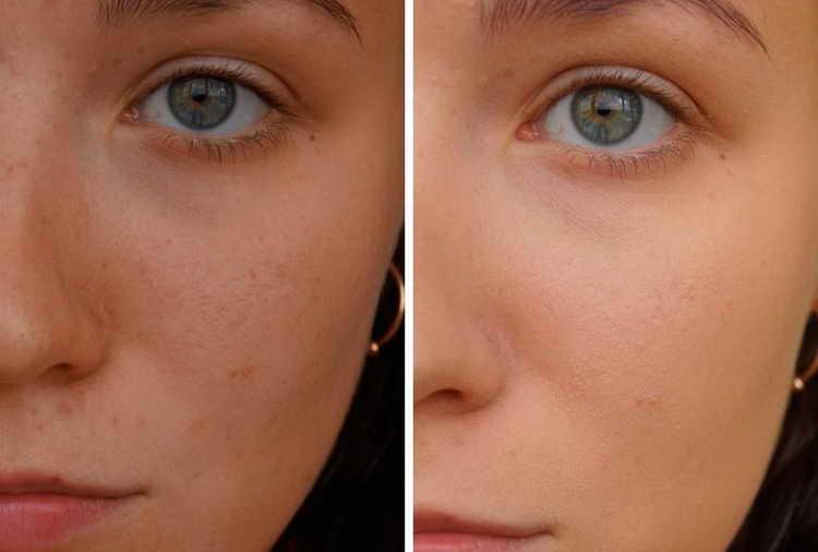 Отзывы об использовании основы под макияж Ив Роше с фото до и после