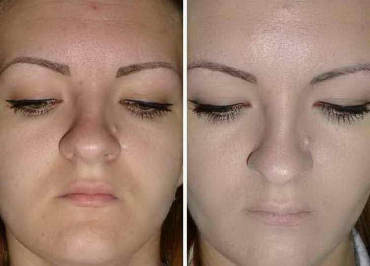 Отзывы об использовании основы под макияж Ив Роше с фото