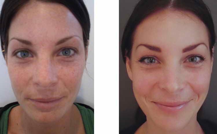 пилинг джесснера до и после фото