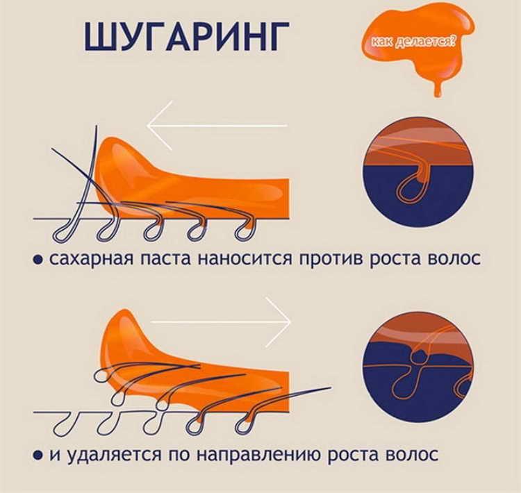 инструкции по уходу за кожей после шугаринга