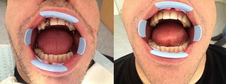 синус лифтинг использование при имплантации зубов