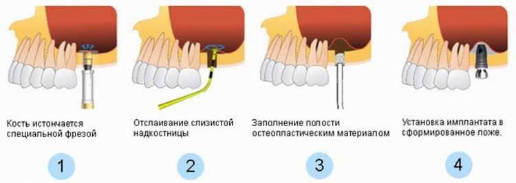 синус лифтинг и имплантация верхних зубов одновременно