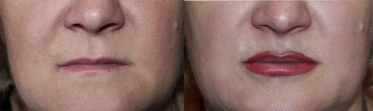 сколько держится татуаж губ с растушевкой