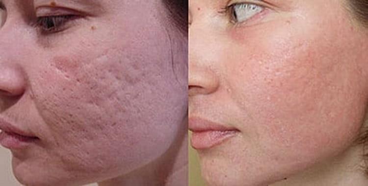 как замазать прыщи на лице тональным кремом