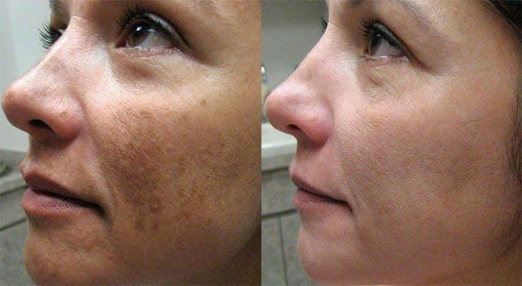 Судя по отзывам с фото до и после, ретиноевый пилинг дает превосходные результаты.