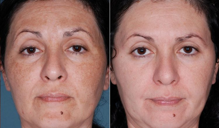 Перед процедурой обязательно прочитайте отзывы о желтом пилинге с фото до и после.