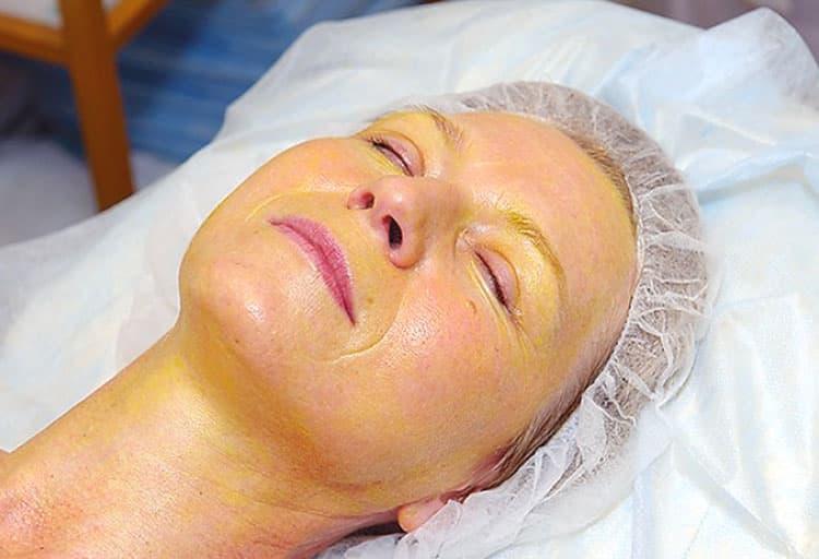 Процедура особенно хорошо помогает при возрастных изменениях кожи.