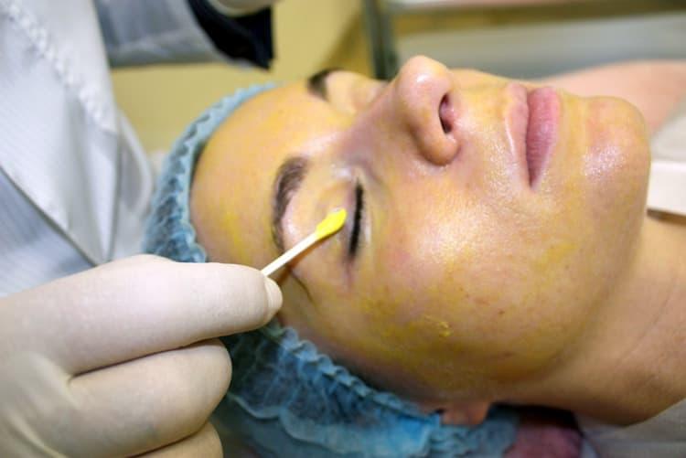 Есть немало положительных отзывов о желтом ретиноевом пилинге лица.