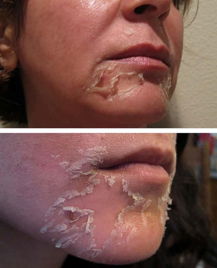 Последующие несколько дней после процедуры лицо будет сильно шелушиться.