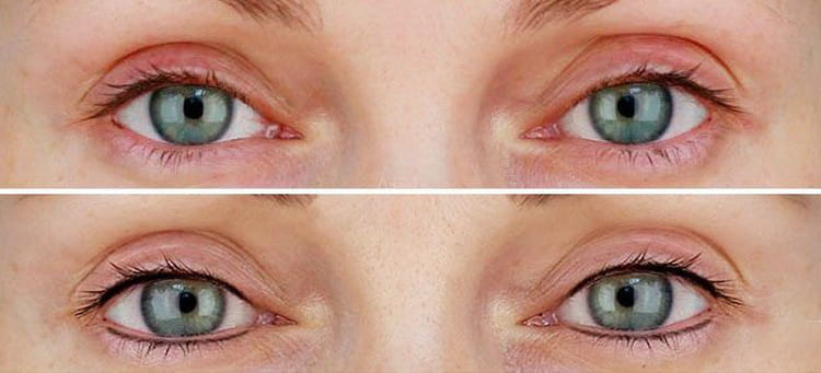 татуаж глаз межресничное пространство