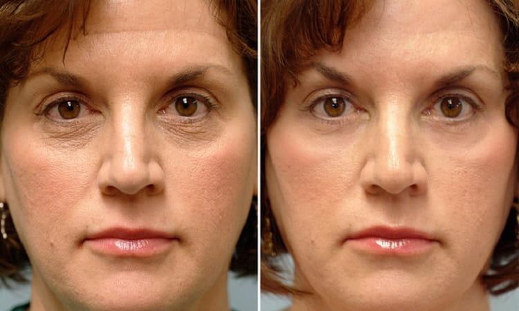 витамины для кожи лица отзывы