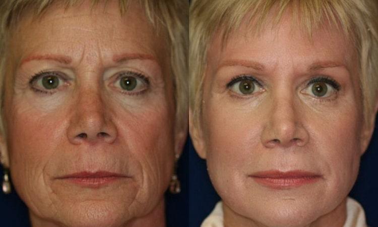 витамины для красоты кожи лица отзыв