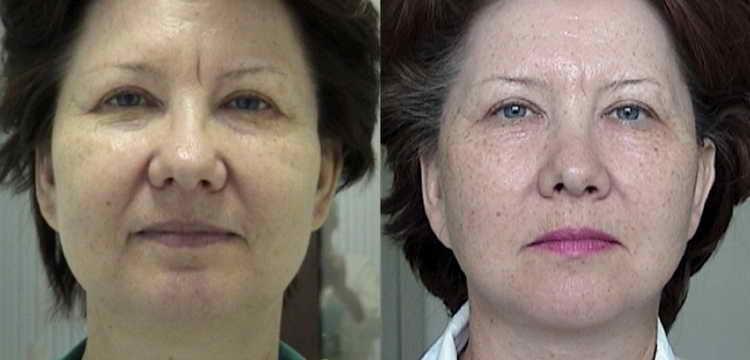 косметика армения отзывы до и после