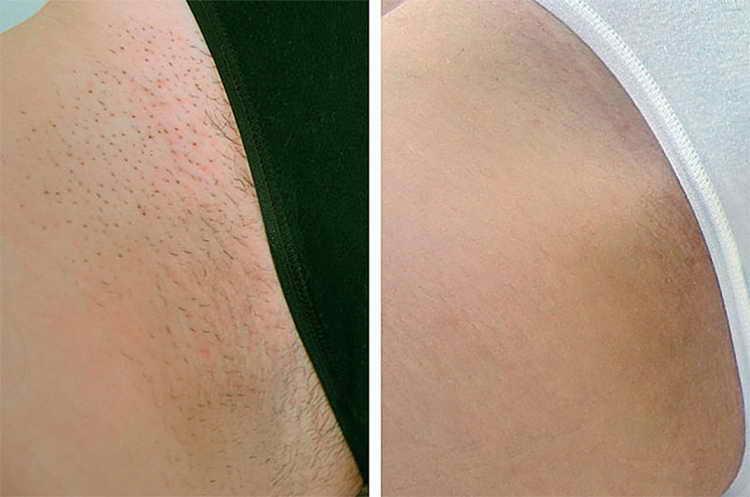 Места девушки бреют интимные