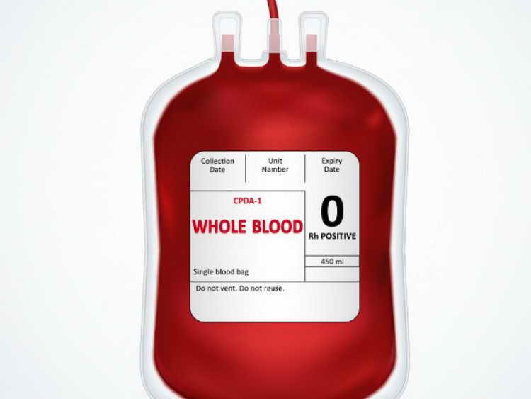 к чему снится кровь на руках