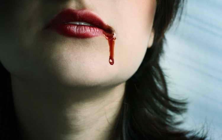 к чему снится кровь у другого человека