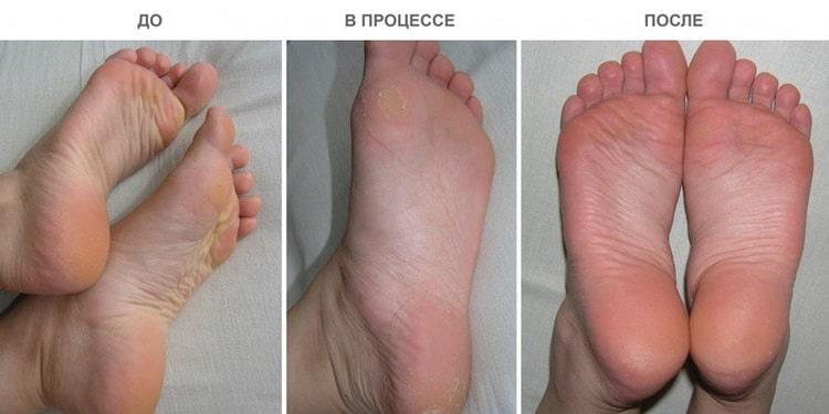 отшелушивающая маска носки для ног