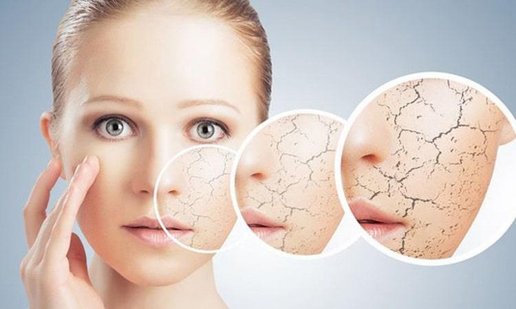 Какие витамины для сухой кожи