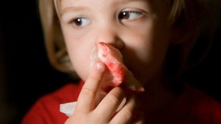 Кровь из носа во сне у ребенка на самом деле является добрым предзнаменованием, особенно, если этот ребенок ваш.
