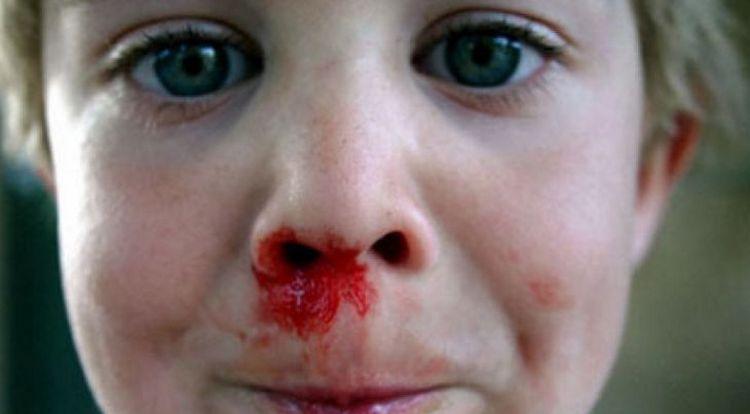 Теперь вы знаете, что означает кровь из носа во сне.