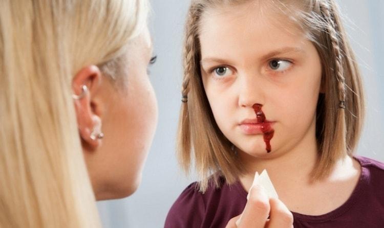Видеть во сне кровь из носа далеко не всегда плохо, чаще такой сон сулит что-то хорошее.