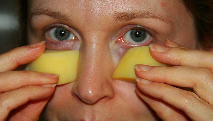 В косметологии применяют картошку, чтобы избавиться от отеков и мешков под глазами.