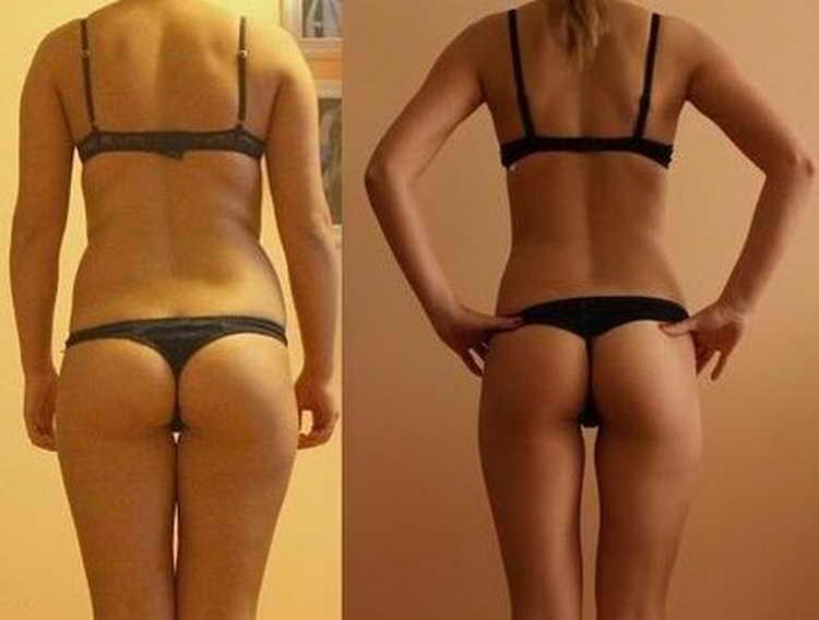 французская диета фото до и после